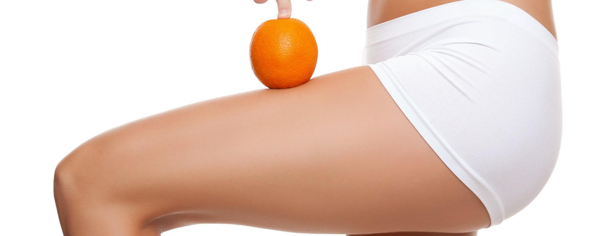 Cellulitebehandlung